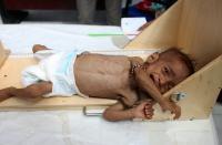 12 مليون يمني مهددون بمجاعة قاتلة