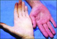"""6 حقائق ترتبط بـ""""فقر الدم"""" ..  تعرّف إليها!"""