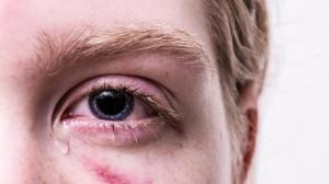 علامات تحذرك من زوج يميل للعنف