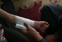 إنقاذ طفل علقت يده داخل (ماكنة تقطيع خشب)