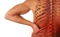 حالات صحية متعددة تسبب آلام الظهر