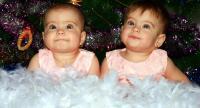ولادة نادرة ..  تحدث مرة كل 32 مليون حالة - صور