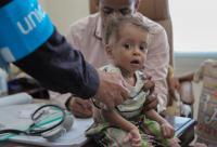 """""""الكوليرا""""يحصد أرواح ٤٧٣ يمنياً خلال شهر"""