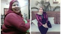 مصرية تخسر 60 كغم من وزنها