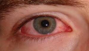 خبراء يكشفون عن ستة أعراض لسرطان العيون