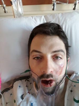 سيجارة الكترونية تفقد شابا أسنانه وتشوه وجهه