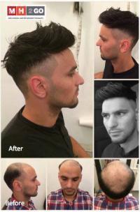 افتتاح شركة MH2GO  المتخصصة بتركيب الشعر الآمن