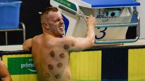 """""""حجامة السباحين"""" تخطف الأضواء في أولمبياد طوكيو"""