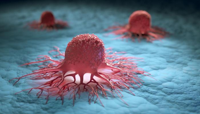 اكتشاف علمي قد يقضي على السرطان نهائيا